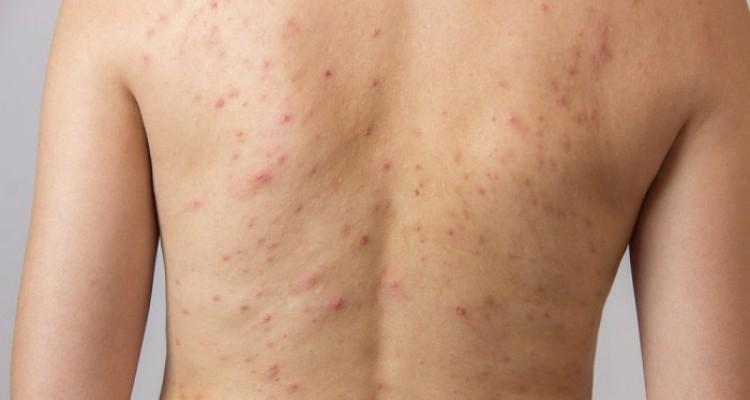 Acné en la espalda y pecho causas y tratamientos naturales