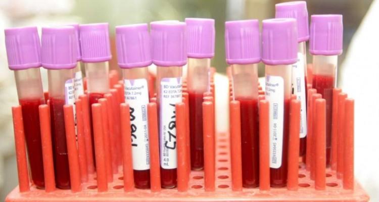 Edición genética para lograr una cura del VIH