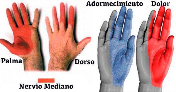Dolor en las Articulaciones o Se Te Duermen los Dedos