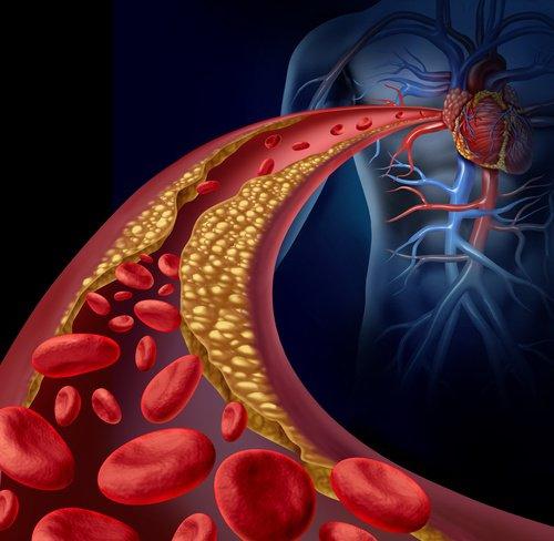 """Tratamiento reduce el colesterol """"malo"""" hasta niveles nunca vistos"""