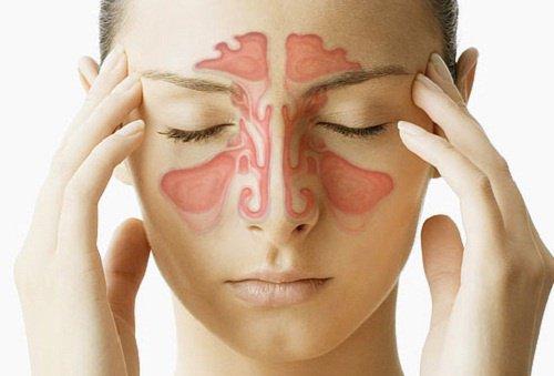 Modos sencillos y eficaces de aliviar el dolor de cabeza sinusal