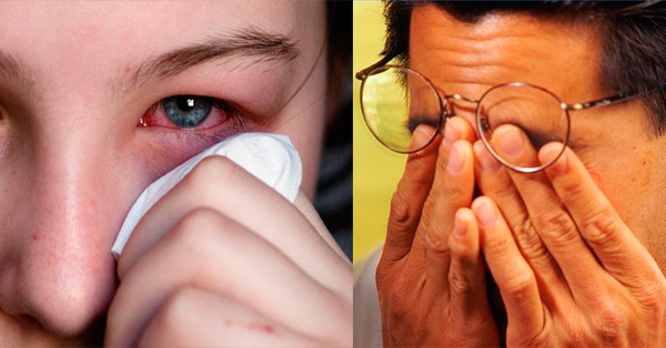 Mejores Remedios Caseros para los Ojos Adoloridos