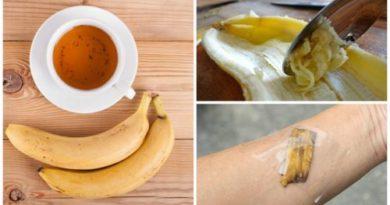 5 formas de utilizar las cáscaras de banana como remedio natural