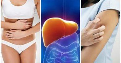 Síntomas que te aquejan cuando tu hígado está sobrecargado de toxinas