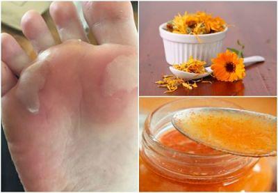 Cómo curar las ampollas de los pies usando 5 soluciones caseras