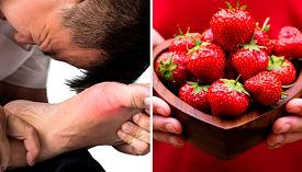 Alimentos que reducen el ácido úrico
