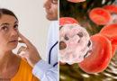Anemia perniciosa: qué es y en qué consiste