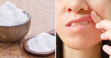 Remedios para curar las llagas en la boca