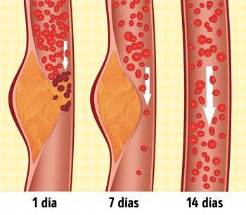¿Qué esladieta DASH ypor qué, según los médicos, seconsidera lamás saludable?