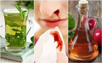 Detener el sangrado nasal con 5 remedios naturales
