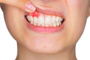 Remedios y consejos naturales para el dolor en las encías