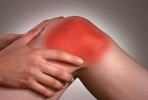 Hierbas ideales para combatir el dolor generado por artritis