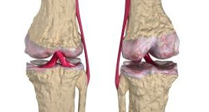 Remedio Para Mantener Tus Huesos Fuertes Y Sanos