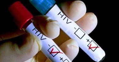 Investigan anticuerpos que neutralizan el virus del sida