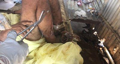 INDIGNACIÓN !Denuncian agentes del 911 supuestamente rechazan llevar hombre con gusanos en una pierna en Guerra.