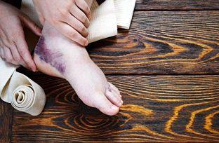 Mejorar un esguince de tobillo con remedios complementarios