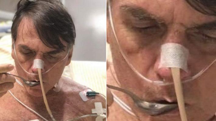 Bolsonaro mejora de cuadro de neumonía tras complicaciones posoperatorias