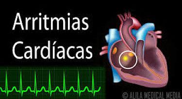 ALERTA: Lo que no sabías de las arritmias cardíacas