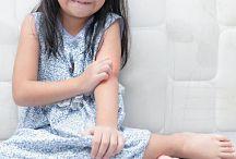 Psoriasis en niños: ¿cómo abordarla?