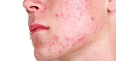 80% de adolescentes sufre acné  #SDQPeriodicodominicano